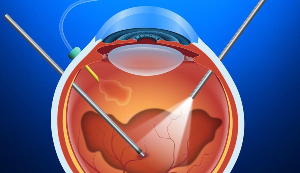 Глаз во время витрэктомия